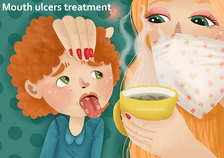 Mouth ulcers in kids